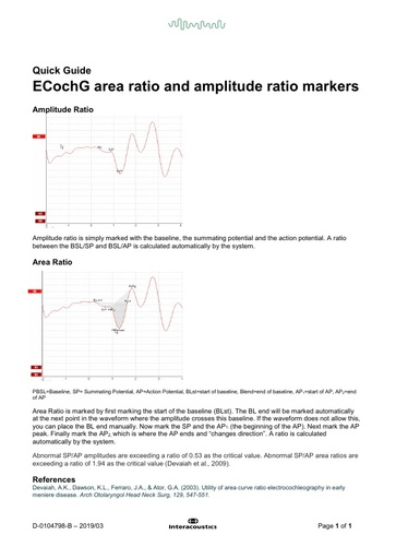ECochG area ratio and amplitude ratio markers